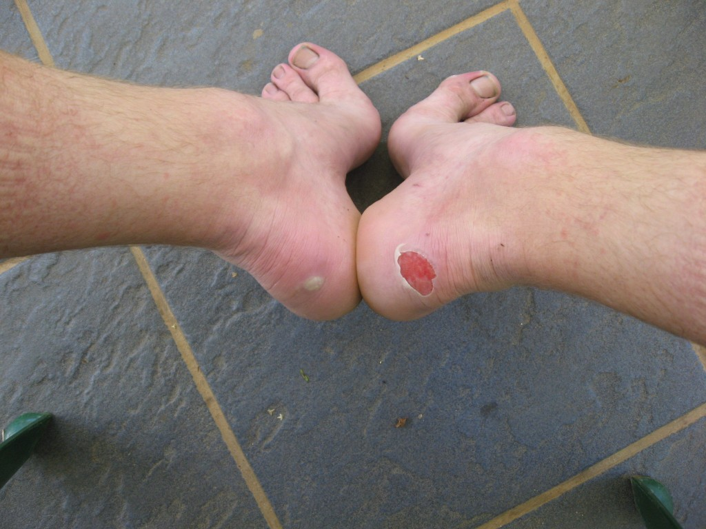 Some blisters